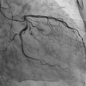 図2 左冠動脈